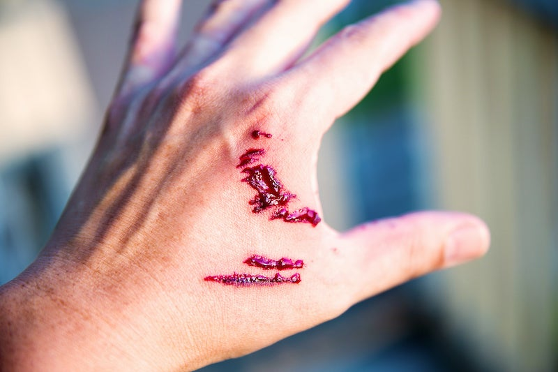 Dog Bite Injury Lawsuit