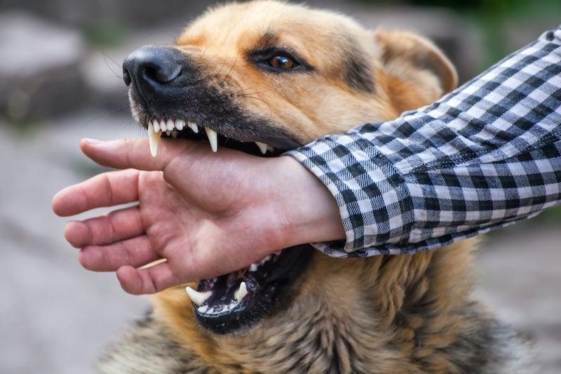 Legal Options Dog Bites