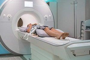 California Traumatic Brain Injury Attorney
