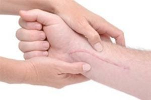 California Scarring and Disfigurement Accident Attorney