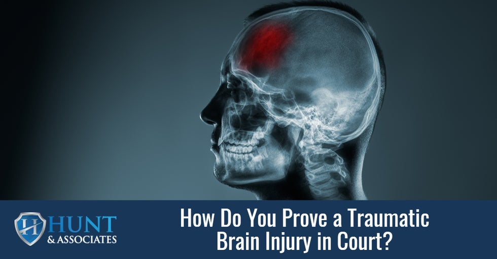 How Do You Prove a Traumatic Brain Injury in Court?