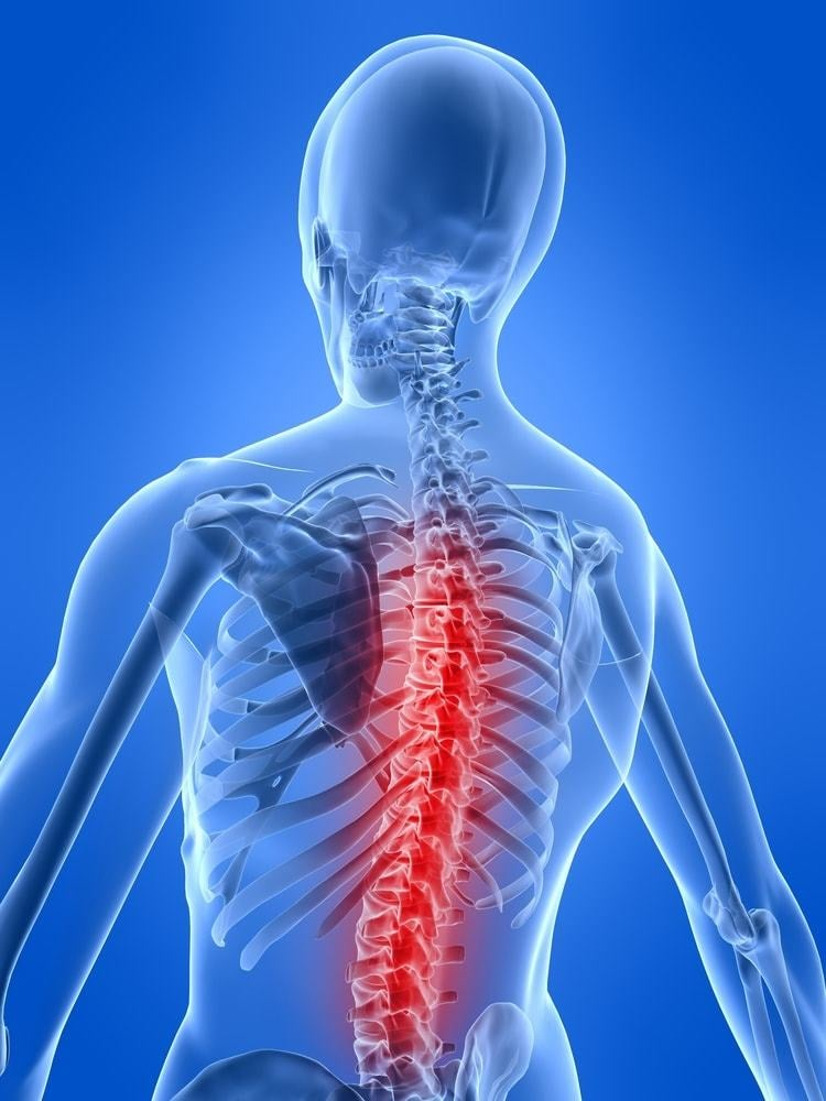 A herniated disc is a rupture of the spine's vertebrae, causing back pain, and numbness or weakness in the arms and legs.